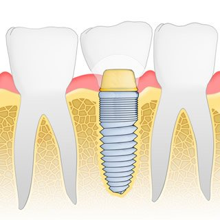 Dental implants Staten Island